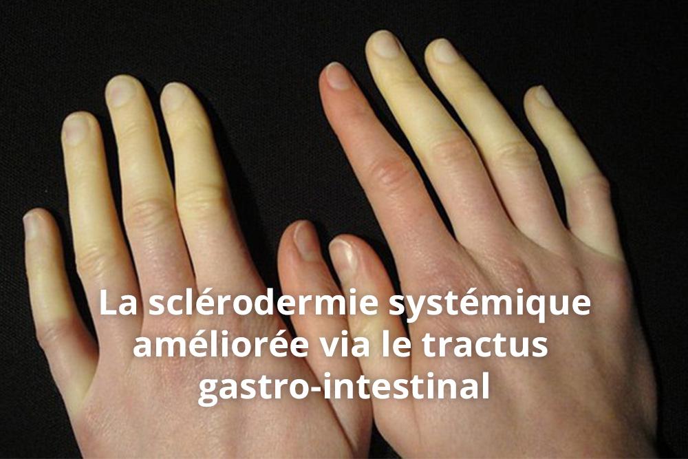Des probiotiques à haute concentration pour la santé intestinale des patients atteints de sclérodermie systémique